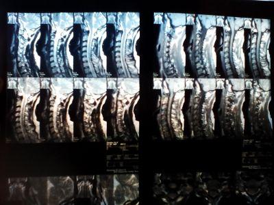 Как грыжа давит на корешок нерва?