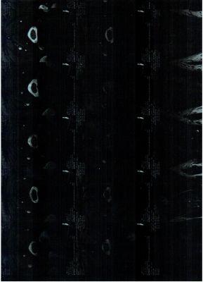 Протрузия диска с6 с7 шейного отдела позвоночника