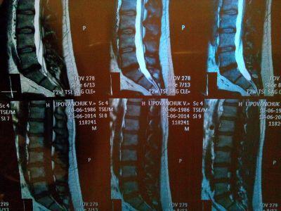 Парамедианная протрузия межпозвонкового диска