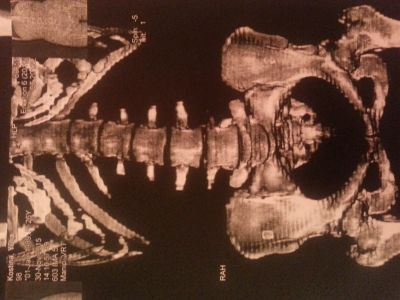 После родов сильно болит спина