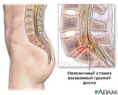 Дексаметазон при болях в спине