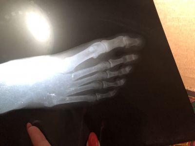 Боли в стопе около пальцев