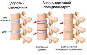 восстановление суставного диска челюсти