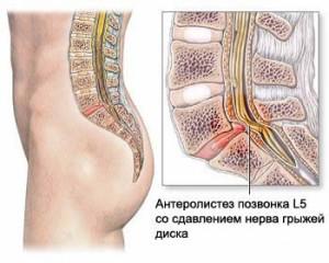 Лечение межпозвоночной грыжи поясничного отдела Обнинск