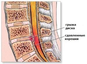 От малой подвижности может появиться плоскостопие