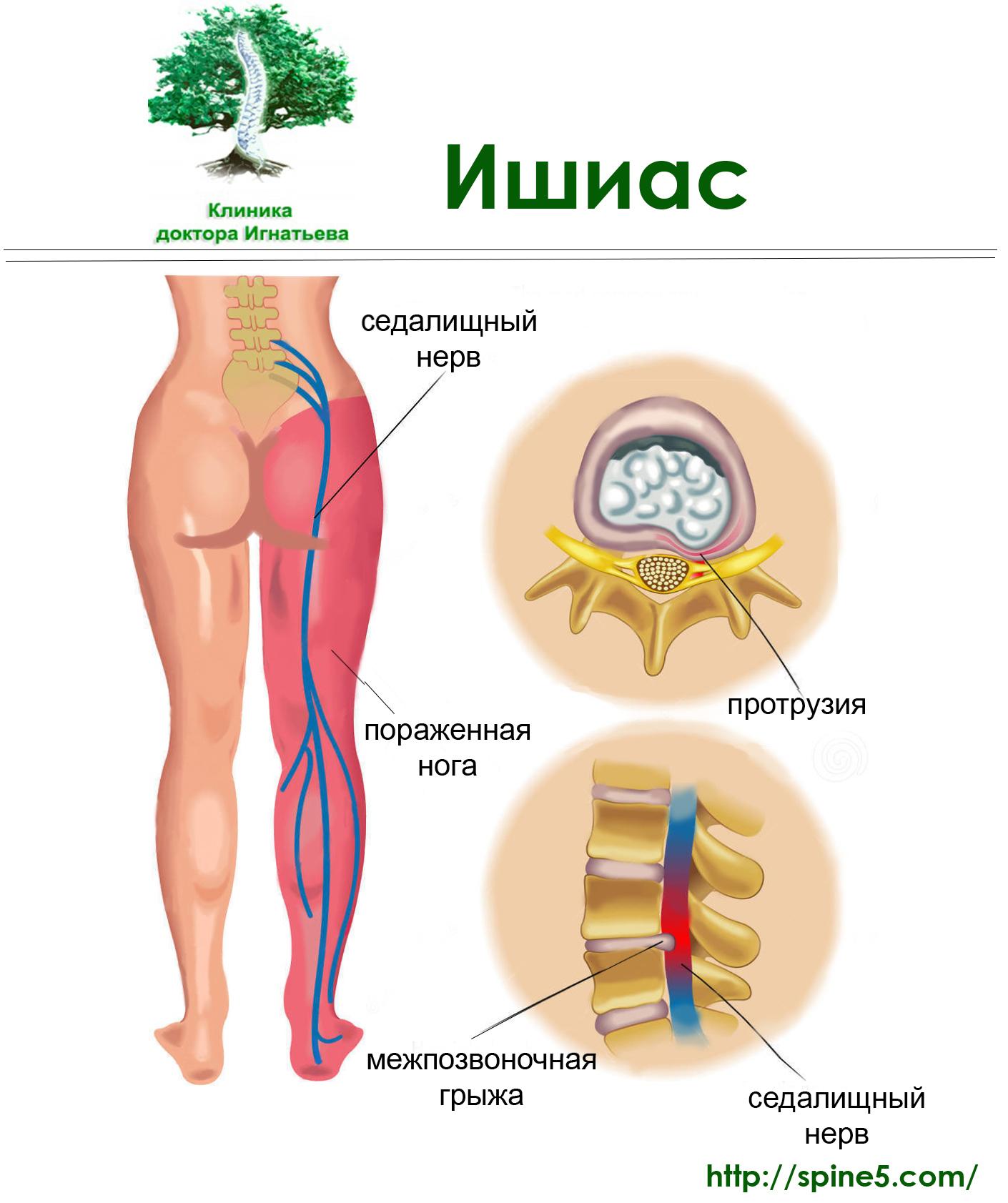 Защемление нерва в спине: лечение в домашних условиях 42