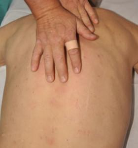 Липосаркома. методы лечения