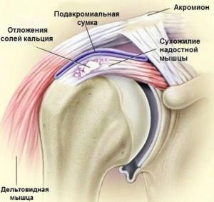 Если хрустит сустав и боль воспаление сустава у крс