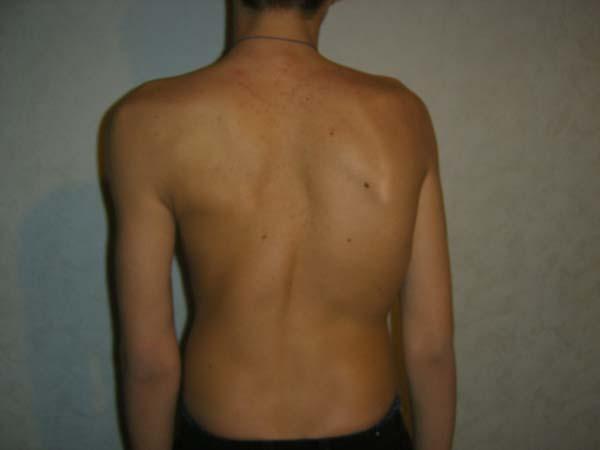 Вогнутость грудного сколиоза