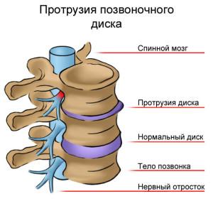 Боль под левой лопаткой остеохондроз лечение