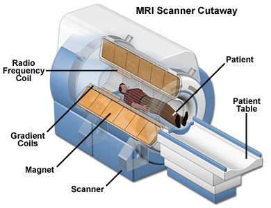 МРТ, изображение 4 - spine5.com