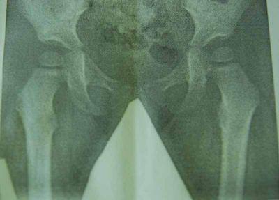 плоско вальгусная деформация стоп лечение