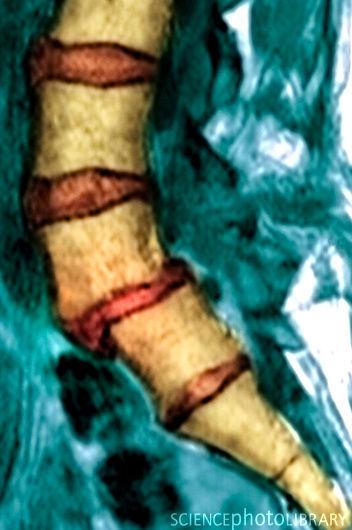 МРТ, изображение 8 - spine5.com
