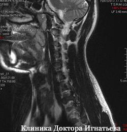 Как вылечить шею боли справа?