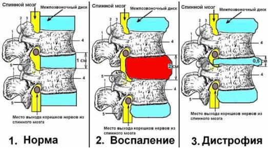 Боли в области спины и живота