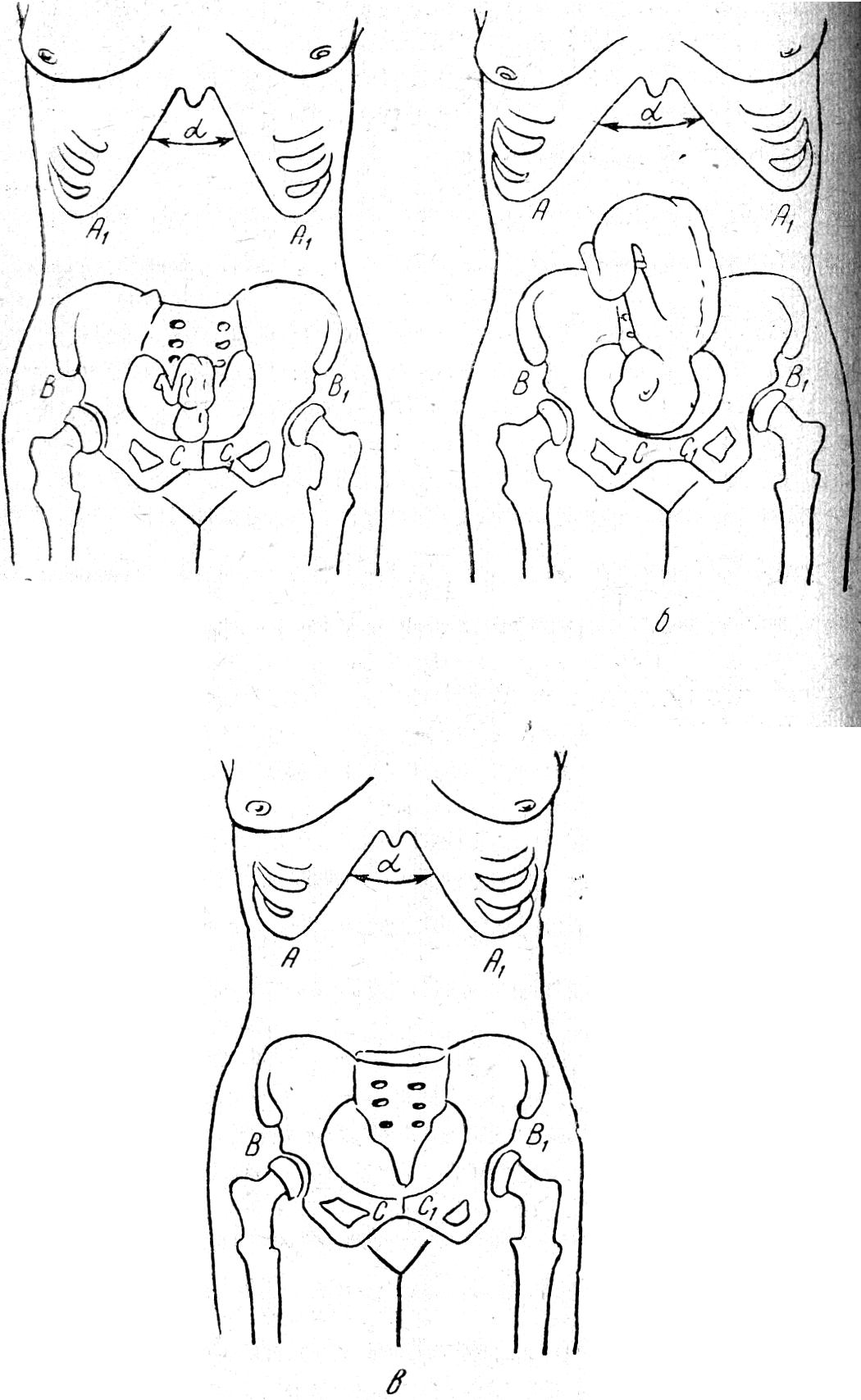 Гранулема зуба лечение москва