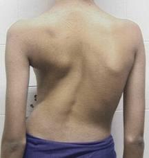 Сколиоз 3-4 степени – симптомы, диагностика, лечение » spine❺.com