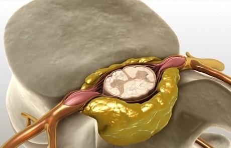 Какие боли и где при плоскастопии?