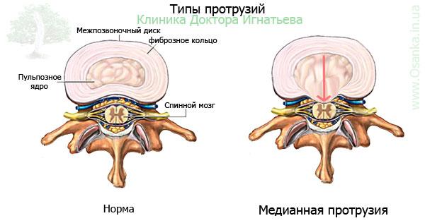 Лечебная физкультура при травме шейного отдела