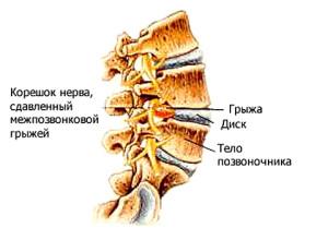 Лечение шейного остеохондроза д видео