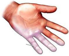 схема суставов рук