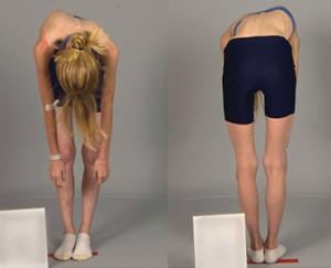Нога стала длиннее после замены тазобедренного сустава боли в коленном суставе при сгибании чем лечить