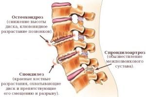 Протрузия и грыжа межпозвонковых дисков шейного отдела