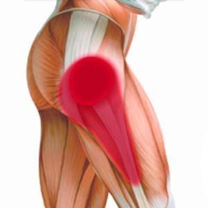 Немеет правая нога от бедра до колена с внешней стороны