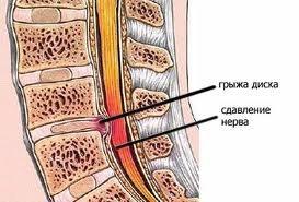 Последствия остеохондроза шейного отдела