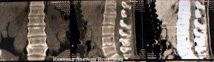 3лечение сколиоза в короткие сроки