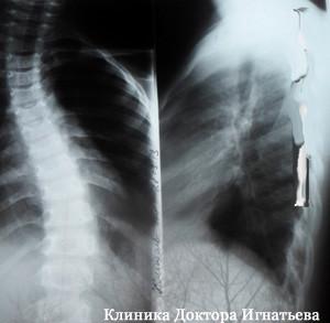 Врач вертебролог Киев