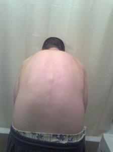 Что делать если спина выпирает?