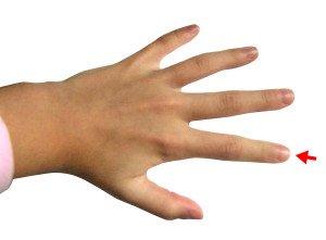 Немеет указательный палец