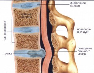За ухом натяжение мышечное неврология