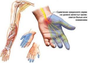 Остехандроз онемение сустава низкое давление тахикардия боли в суставах