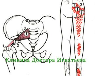 болит нога отдает в тазобедренный сустав
