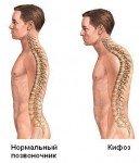 Хирургическая больница Киев грижа спины