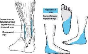 Немеет левая нога причины