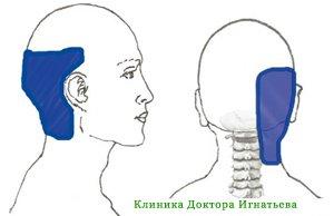 Боль в спине отдает в ногу и высокая температура