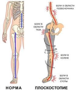 Боли в стопе при ходьбе лечение