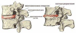 Позвоночник имеются массивные краевые остео