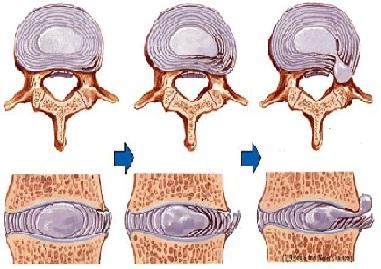 Как облегчить защемление нерва в грудном отделе