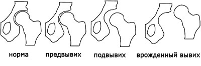Задержка развития тазобедренного сустава - Клиника Доктора ...