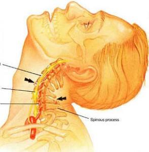 Что может болеть в спине в области лопаток