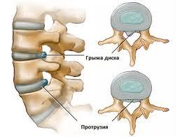 Протрузия межпозвонковых дисков шейного отдела – симптомы, лечение ...