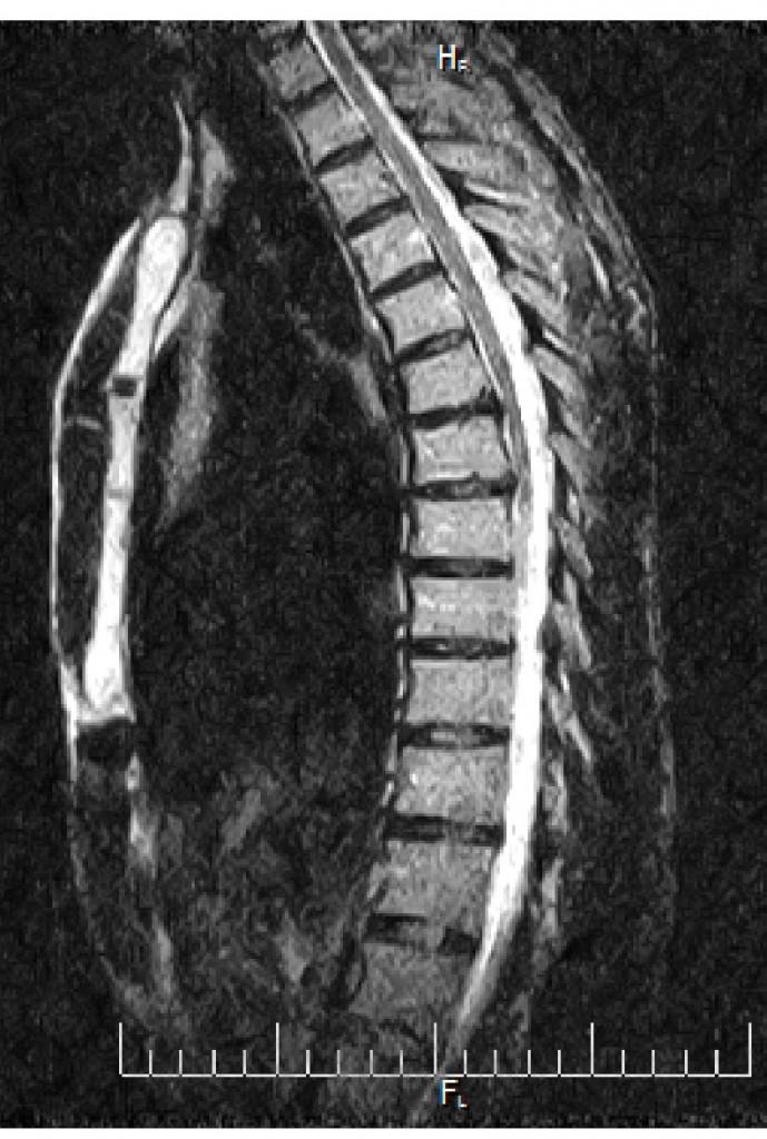 Протрузия грудного отдела - Клиника Доктора Игнатьева г. Киев