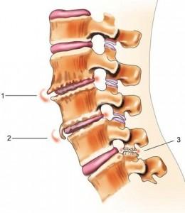 Обострение остеохондроза шейного отдела - Клиника Доктора ...