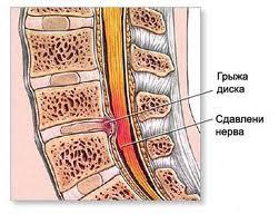 При кашле болит спина в области лопаток температура