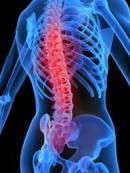 Последствия падения на спину