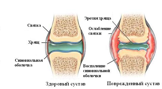 Ревматоидный артрит хруст в суставах комплекс физических упражнений при эндопротезировании тазобедренного сустава